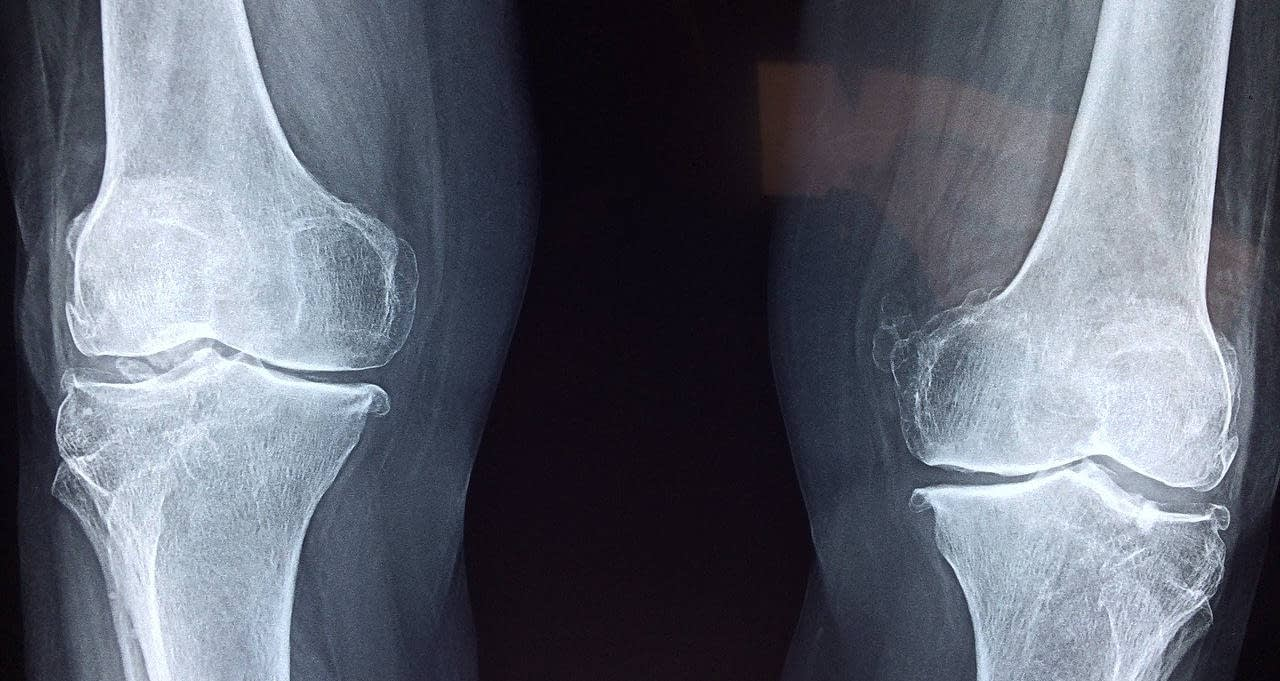 Do you have knee pain?